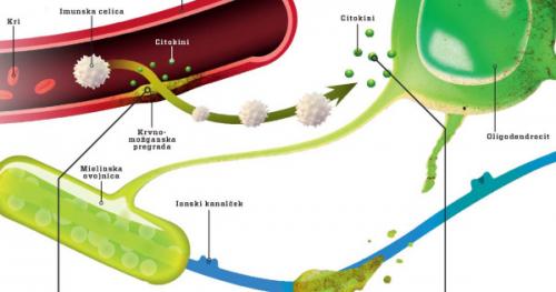 Iz slovenske izdaje revije Science Illustrated: Matične celice proti multipli sklerozi